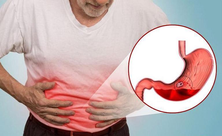 lưu ý khi dùng thuốc nam trị xuất huyết dạ dày