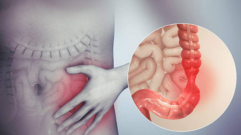 Triệu chứng của các bệnh đường ruột có xu hướng bùng phát mạnh sau khi dùng đồ uống chứa cồn