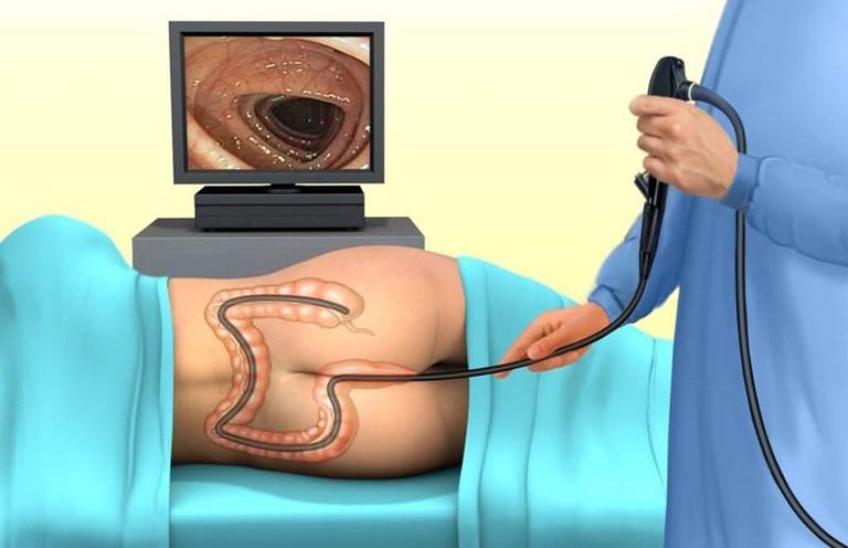 chẩn đoán polyp đại tràng