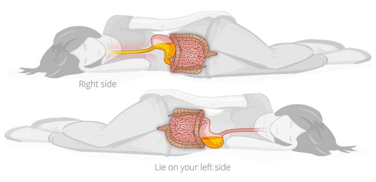 trào ngược dạ dày nằm nghiêng bên nào
