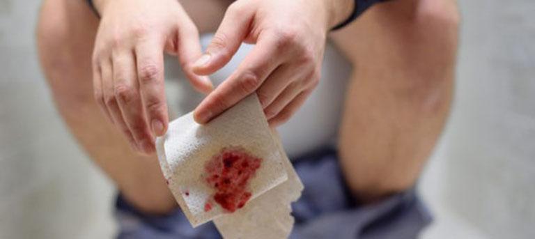 Viêm xung huyết đại tràng có thể gây xuất huyết (chảy máu)