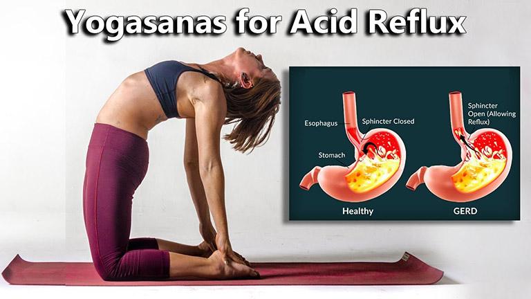 Yoga là bộ môn tập luyện có khả năng hỗ trợ kiểm soát chứng trào ngược dạ dày thực quản