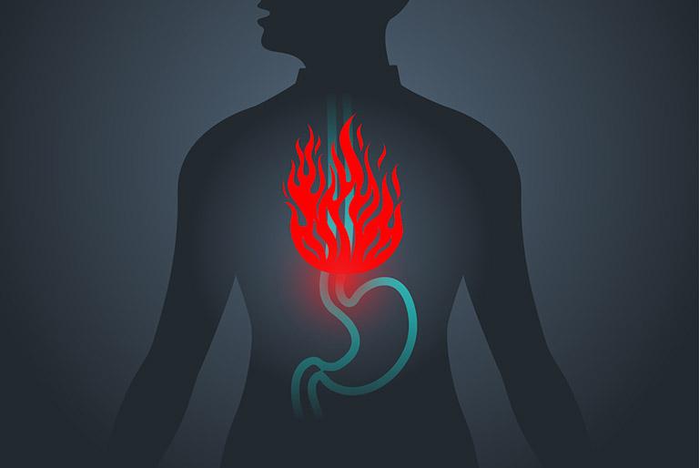 GERD thường gây đau nhói ở vùng thượng vị