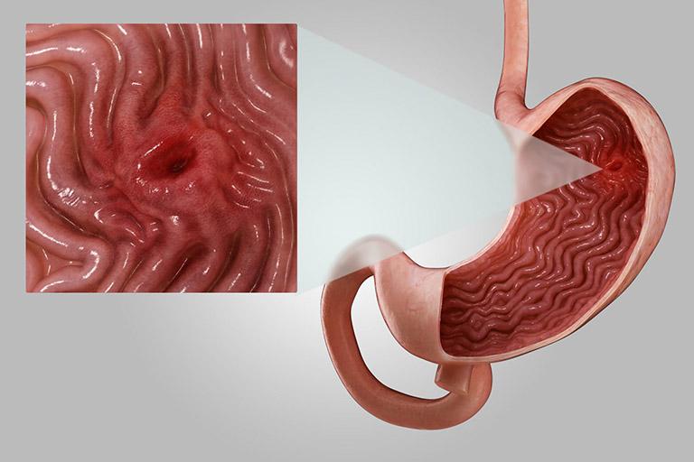 Loét dạ dày tá tràng nặng cũng có thể gây đau nhói ở vùng thượng vị
