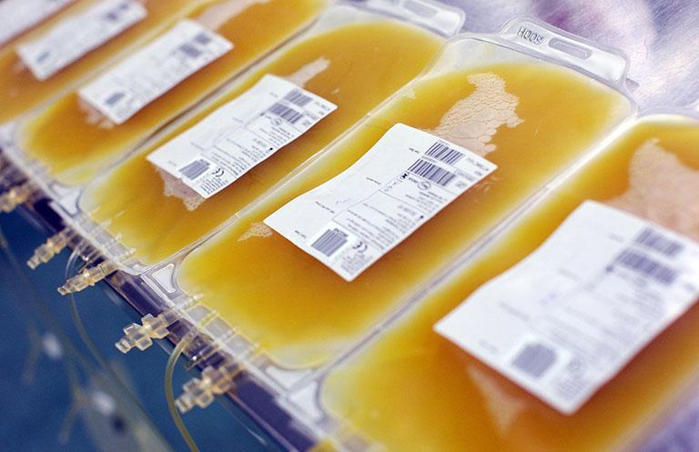 Xuất huyết dạ dày có phải truyền máu