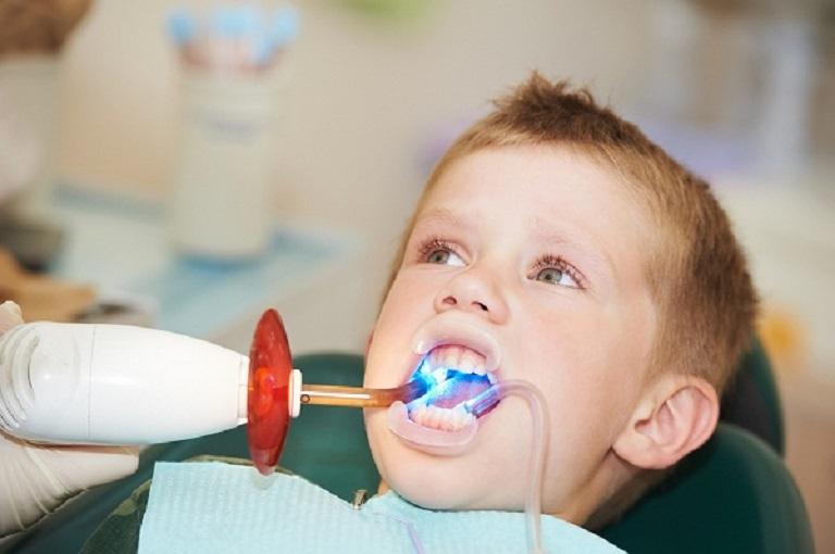Trám răng thường được chỉ định với trường hợp bé bị sâu răng giai đoạn đầu
