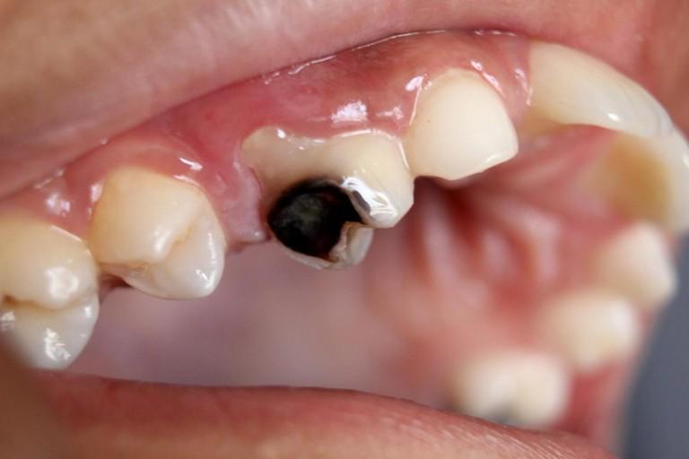 Bé 5 tuổi bị sâu răng có thể do ăn quá nhiều đồ ngọt