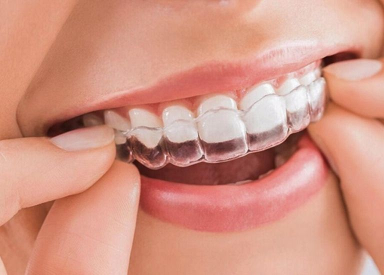 Các loại niềng răng trong suốt ngày càng được nhiều người lựa chọn