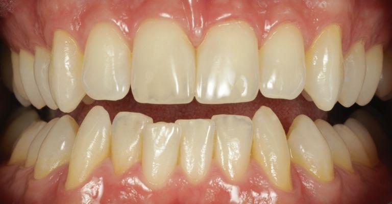 Nắn chỉnh răng khấp khểnh nhẹ