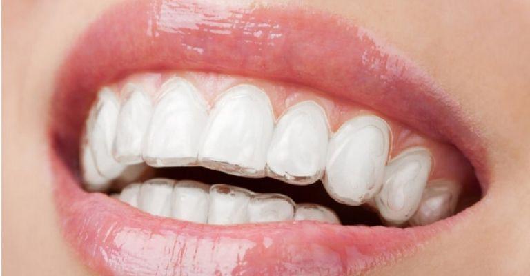 Niềng răng trong suốt loại Clear Aligner được dùng nhiều
