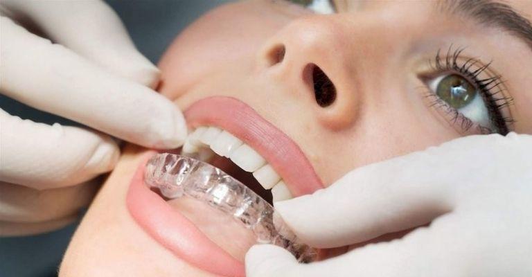 Ecligner là phương pháp được đánh giá cao trong các loại niềng răng tróng suốt hiện nay