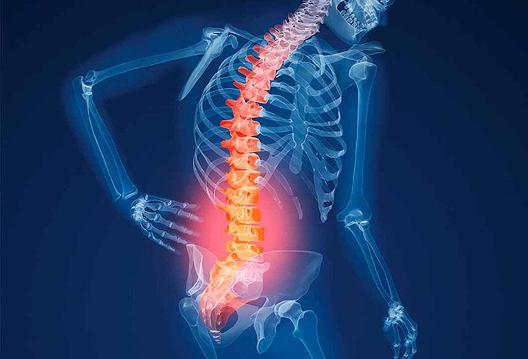 Tỷ lệ mắc bệnh loãng xương hiện nay ngày một tăng cao