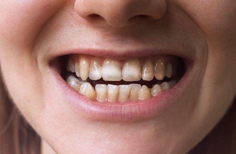 Mòn men răng gây nên tình trạng vàng ố, mất thẩm mỹ