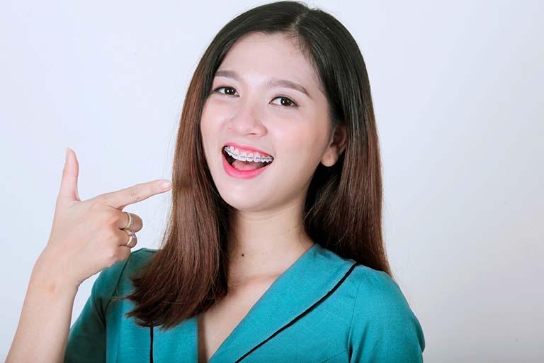 Độ tuổi thích hợp để niềng răng là khi nào? Có nên niềng răng cho trẻ ngay từ khi còn nhỏ không?