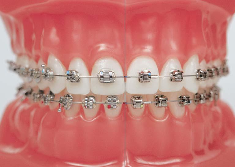 Hiện nay công nghệ ngày càng hiện đại nên có rất nhiều phương pháp niềng răng cho người bệnh lựa chọn