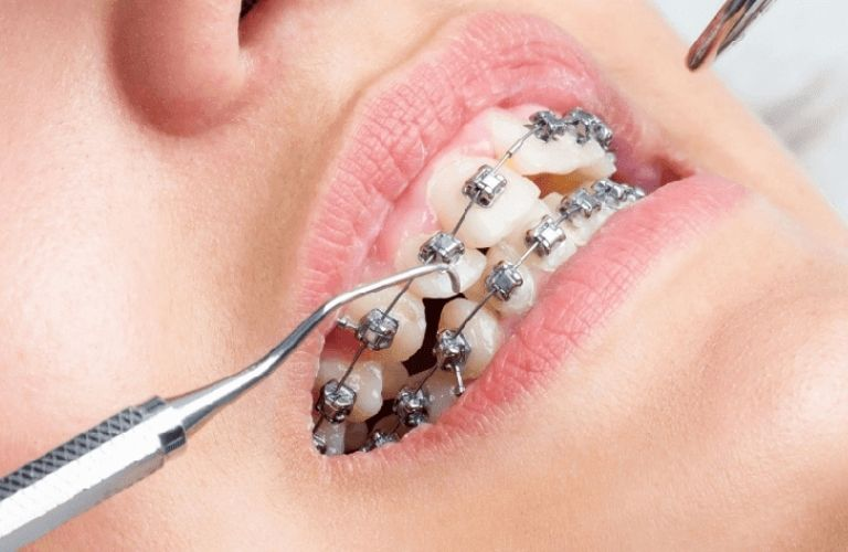 Bạn cần thực hiện đầy đủ theo quy trình niềng răng chuẩn nhằm tránh các tác hại không tốt xảy ra