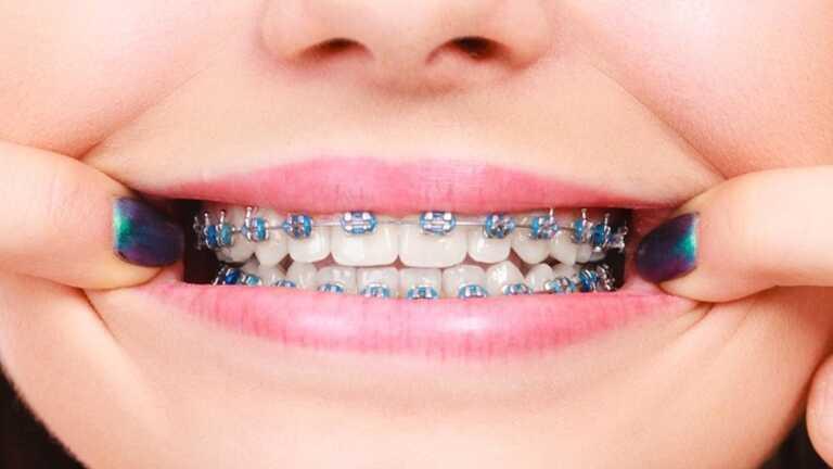 Chi phí niềng răng có nhiều mức khác nhau tùy vào biện pháp bạn lựa chọn