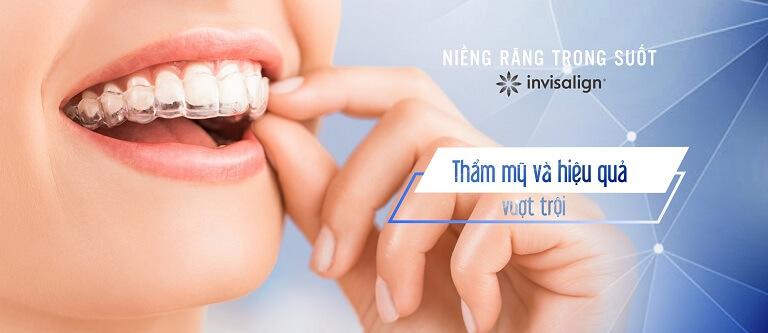 Niềng răng vô hình cần được thực hiện ở các nha khoa uy tín