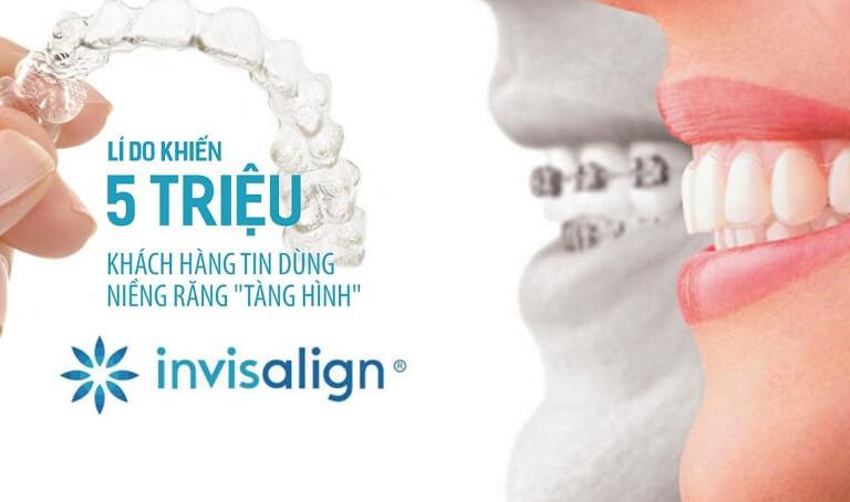 Một quy trình niềng răng Invisalign sẽ bao gồm nhiều bước khác nhau