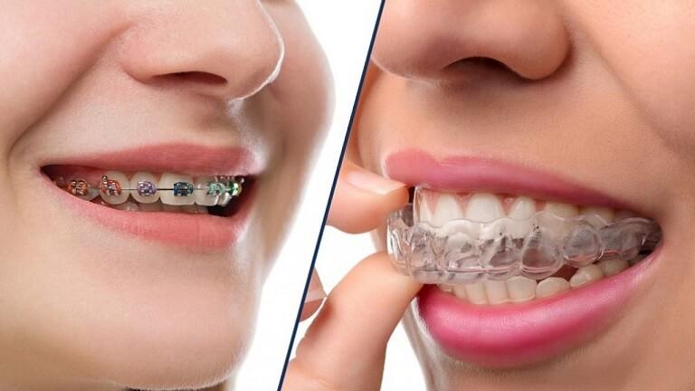 Ưu và nhược điểm của niềng răng Invisalign so với niềng răng mắc cài