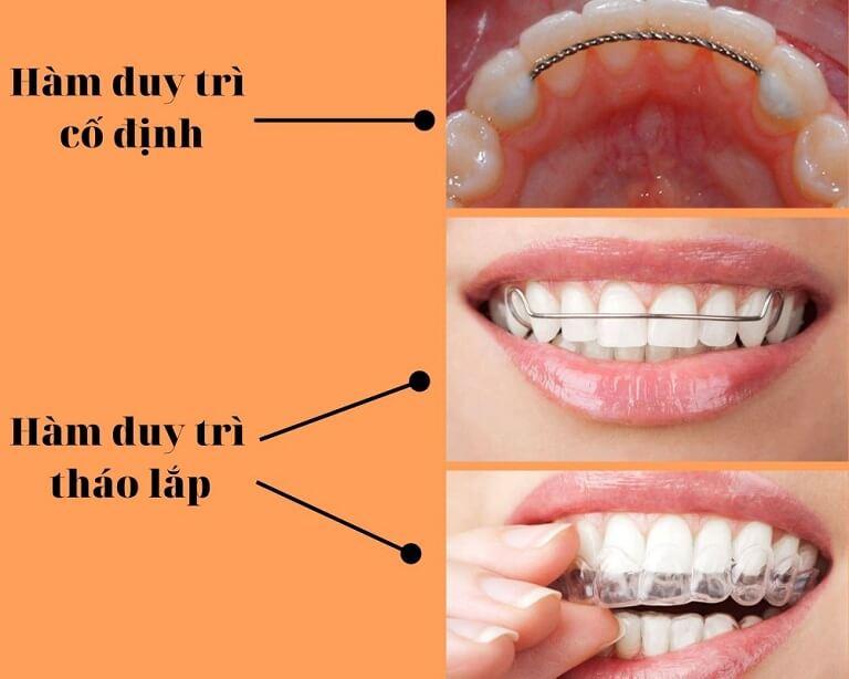 Bệnh nhân sau khi tháo niềng răng cần đeo hàm duy trì giúp răng ổn định