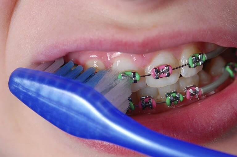 Bên cạnh thói quen ăn uống, bạn cần biết cách vệ sinh răng sạch sẽ