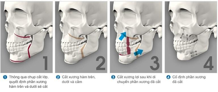 Niềng răng xong bị hô lại thì bạn nên sử dụng kết hợp phẫu thuật cắt hô và niềng răng