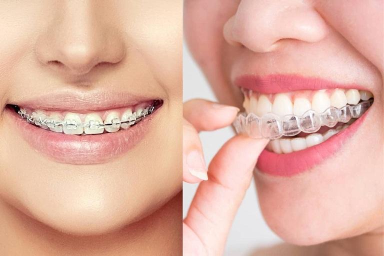 Trong những trường hợp bất đắc dĩ, bác sĩ mới quyết định cho bệnh nhân nhổ răng