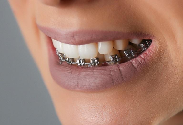 Hình ảnh niềng răng móm bằng mắc cài kim loại