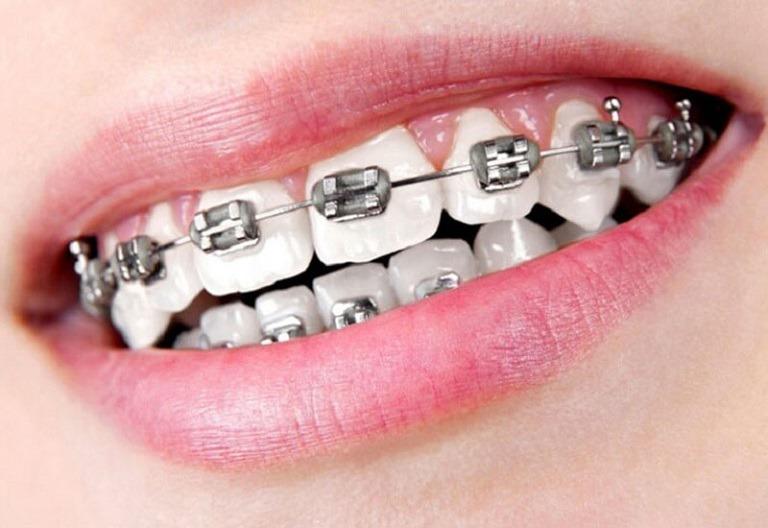 Niềng răng mắc cài tự buộc là một trong những biện pháp chỉnh nha hiện đại nhất hiện nay