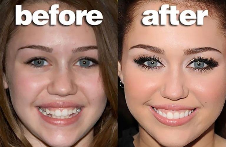 Trong nhiều trường hợp, người niềng răng đã có thể thay đổi cuộc đời nhờ có nụ cười tự tin hơn