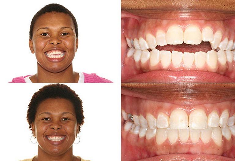 Niềng răng thay đổi khuôn mặt trở nên cân đối hơn