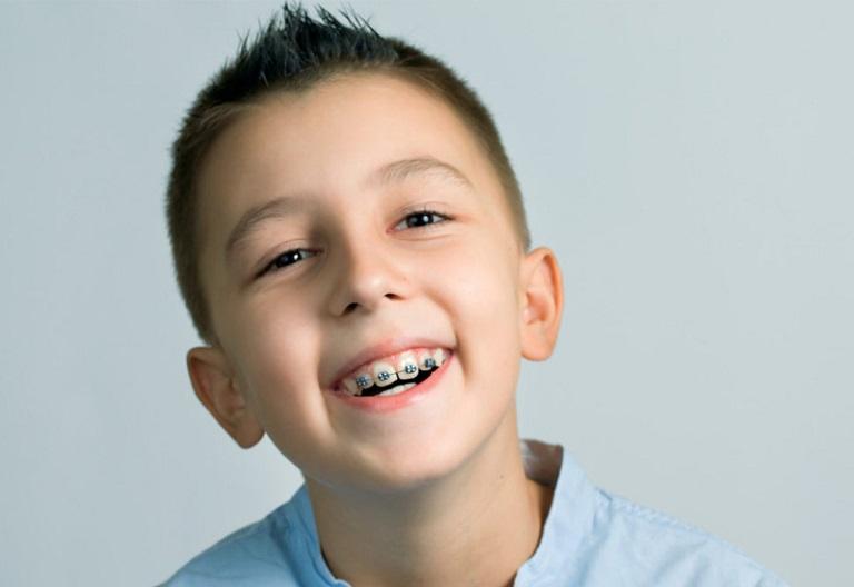 Nên cho trẻ thực hiện niềng răng trước khi bước qua tuổi 16