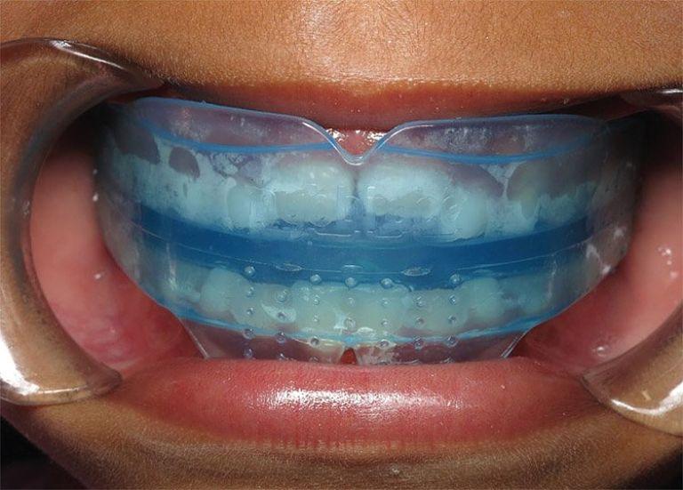 Niềng răng Trainer cho người lớn đạt hiệu quả chỉnh nha tốt và tiết kiệm chi phí
