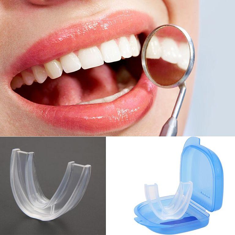 Bạn nên mua niềng ở các địa chỉ uy tín để đảm bảo an toàn khi niềng răng