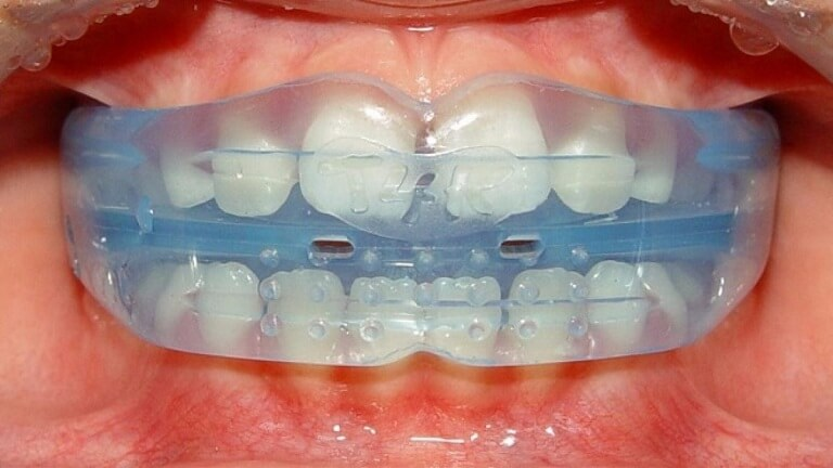 Niềng răng Trainer là một khay silicon, có tác dụng nắn chỉnh hàm răng tại nhà