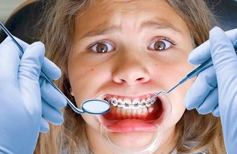 Niềng răng xong bị móm là một nguy cơ có thể xảy ra trong quá trình chỉnh nha