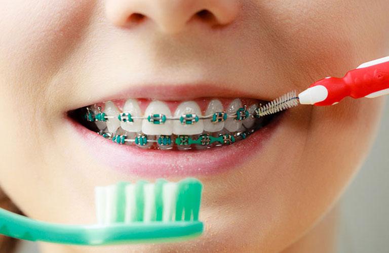 Vệ sinh răng miệng đúng cách để ngăn ngừa niềng răng xong bị móm