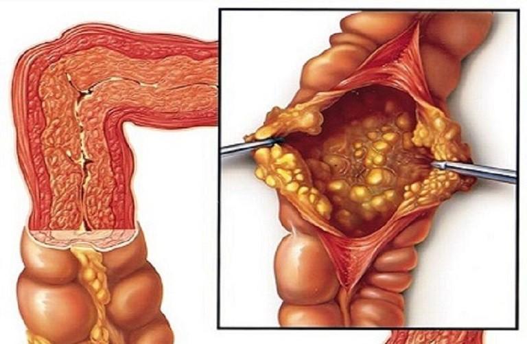 Bệnh viêm đại tràng màng giả