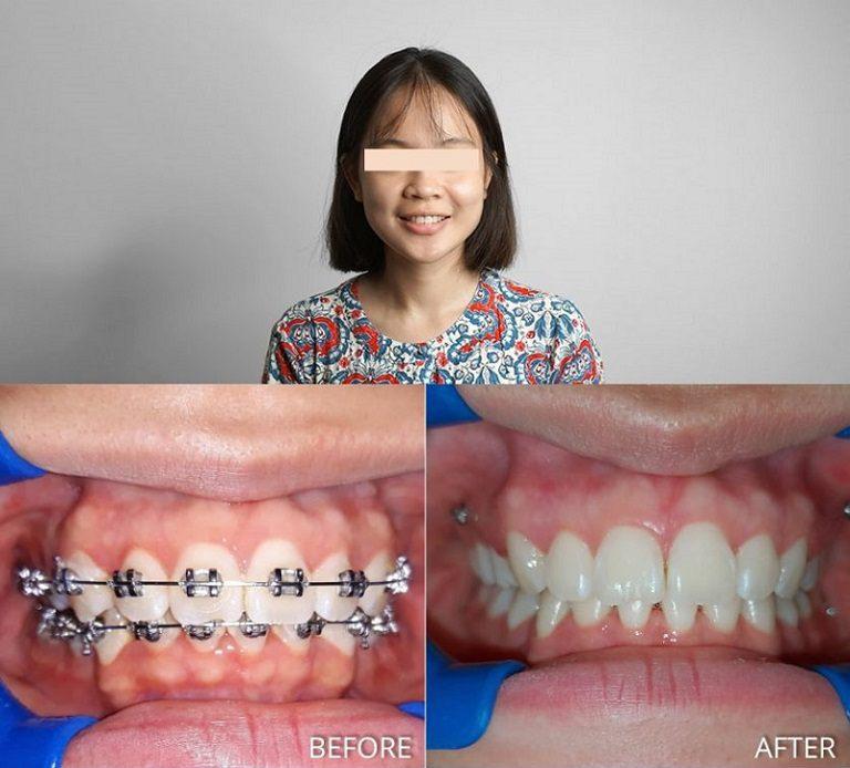Hình ảnh niềng răng trước và sau