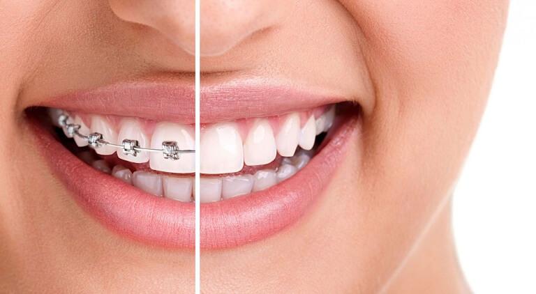 Một quá trình niềng răng cơ bản gồm có 7 bước thực hiện