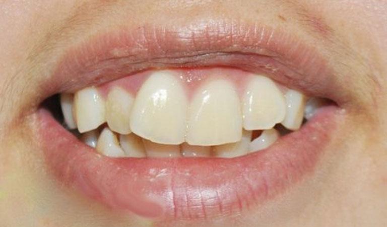 Răng lệch nhân trung có thể do nhiều nguyên nhân khác nhau