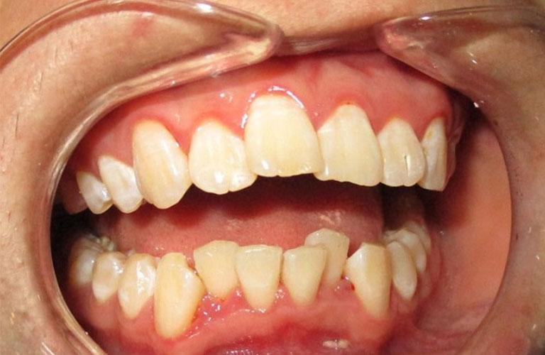 Răng lệch nhân trung cũng là một biến chứng có thể xảy ra sau niềng răng