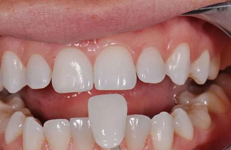 Hình ảnh thực tế phương pháp bọc răng sứ
