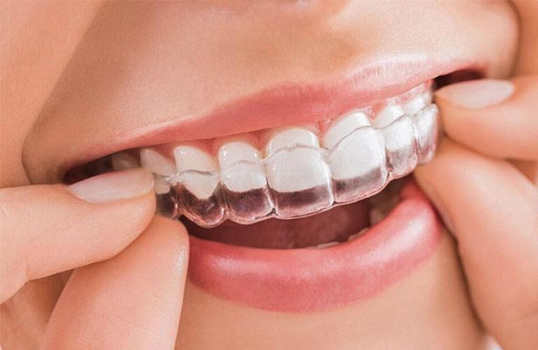 Niềng răng trong suốt là phương pháp hiện đại khắc phục răng lệch nhân trung