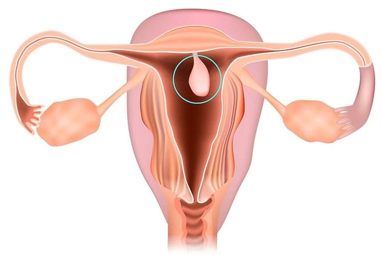 Polyp cổ tử cung cũng là một trong số các yếu tố làm gia tăng tình trạng bệnh