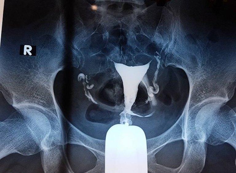 Bác sĩ có thể chỉ định chị em chụp cản quang nhằm chẩn đoán chính xác tình trạng bệnh