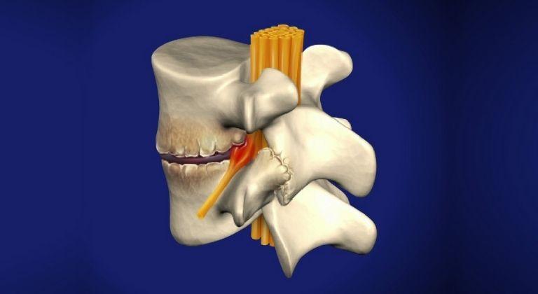 Bệnh có thể gây hình thành thêm gai xương