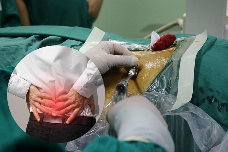 Phẫu thuật được áp dụng khi các biện pháp điều trị thoát vị đĩa đệm thông thường không mang lại hiệu quả