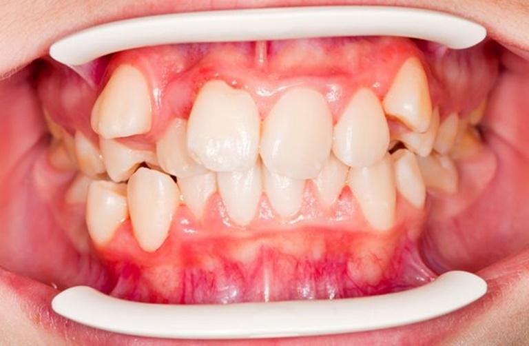 Dây thun còn có tác dụng kéo chỉnh răng khấp khểnh, mọc lệch về đúng vị trí